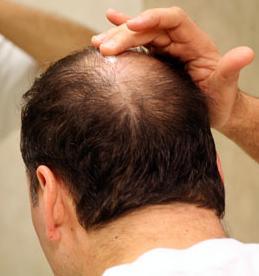 Hypnosis for Hair Loss
